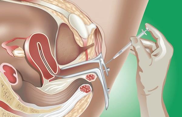 Lọc rửa tinh trùng - Phương pháp hỗ trợ sinh sản đối với các trường hợp vô sinh, hiếm muộn