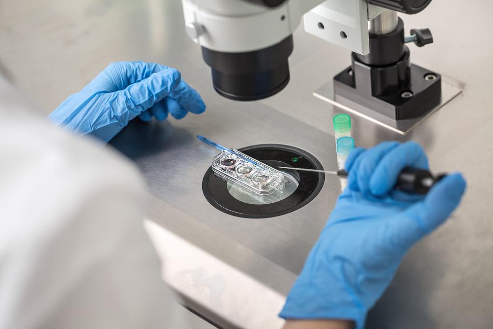 Chẩn đoán tiền chuyển phôi PGD/CGH Micro-array - giải pháp sinh con hiệu quả