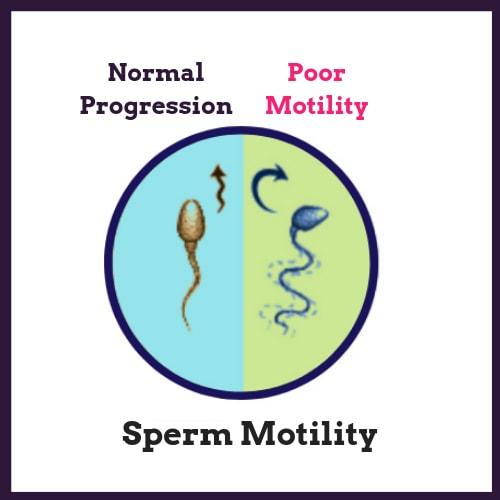 Sàng lọc tinh trùng để sinh con trai được không?